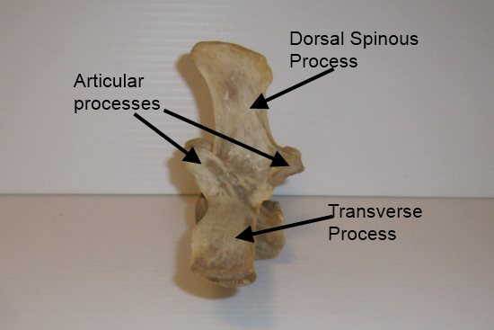 The lumbar and sacral vertebrae